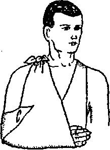 Підвішування руки на косинці